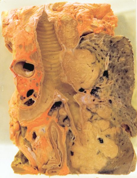 Lung tumour sufferers were once encouraged to eat carrots (which contain the orange pigment beta carotene) to fight the disease. This lung shows pigment in the surrounding fat tissue.